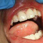 Афтозный стоматит - фото, симптомы у детей и взрослых