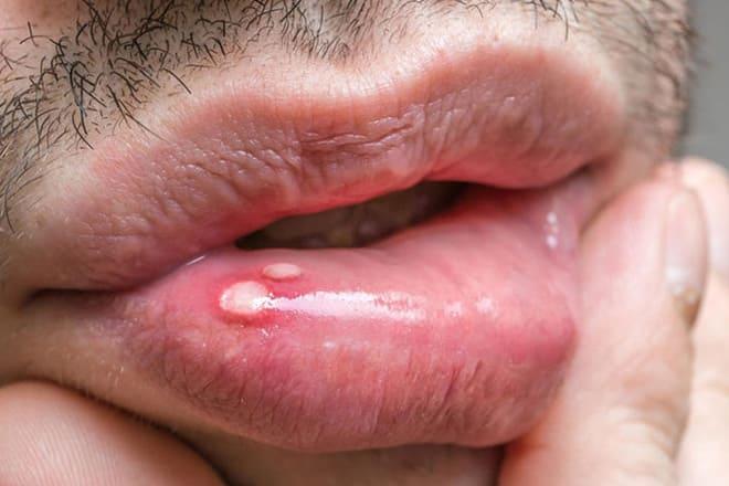 Язвочка на губе