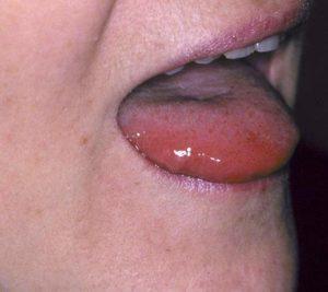 krapivnica-stomatit-foto