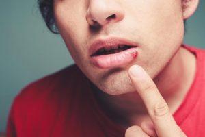 prichiny-allergicheskiy-stomatit
