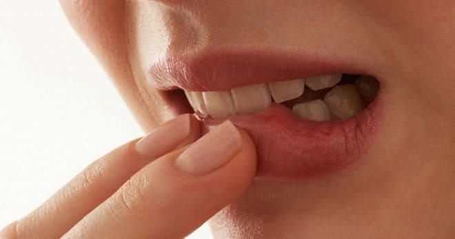 Аллергический стоматит: что это такое?