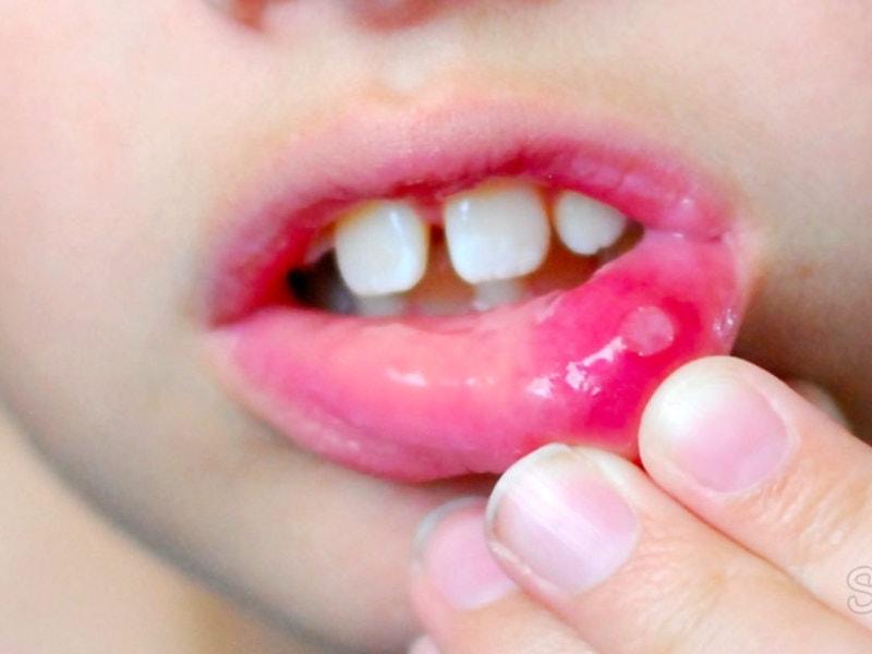 герпетический стоматит у ребенка причины