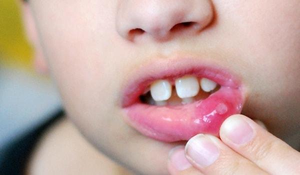 Хлорофиллипт при стоматите у детей