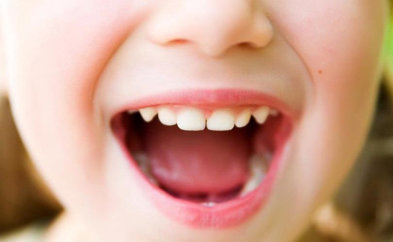 Чем лечить стоматит на десне у ребенка