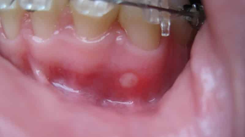 Стоматит во рту - фото