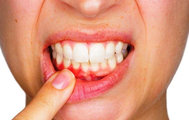 Симптомы зубного стоматита