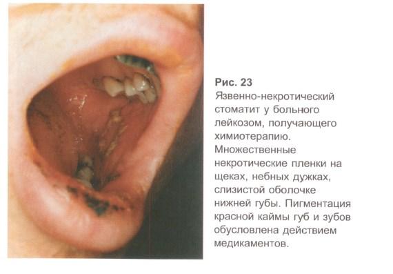 Особенности диагностики стоматита
