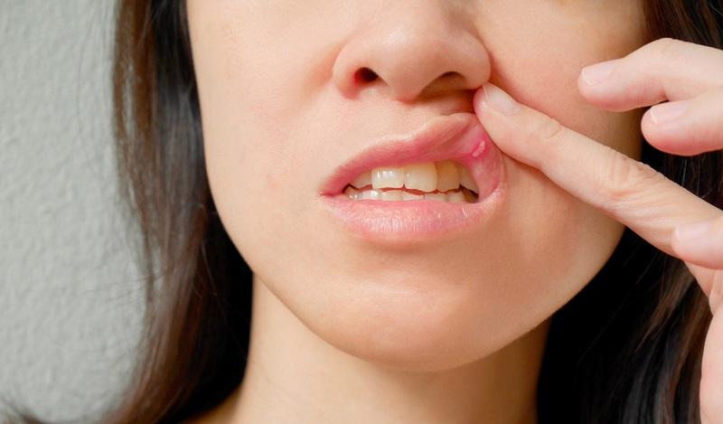 Симптомы травматического стоматита