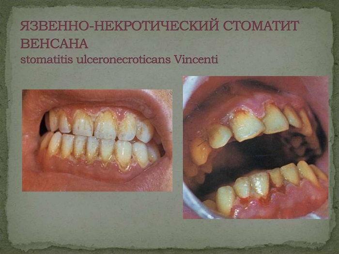 Лечение стоматита Венсана