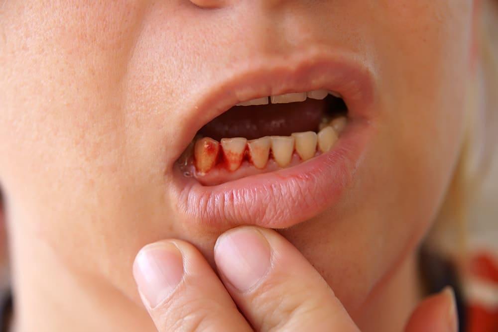 Почему появляется кровь во рту при стоматите?