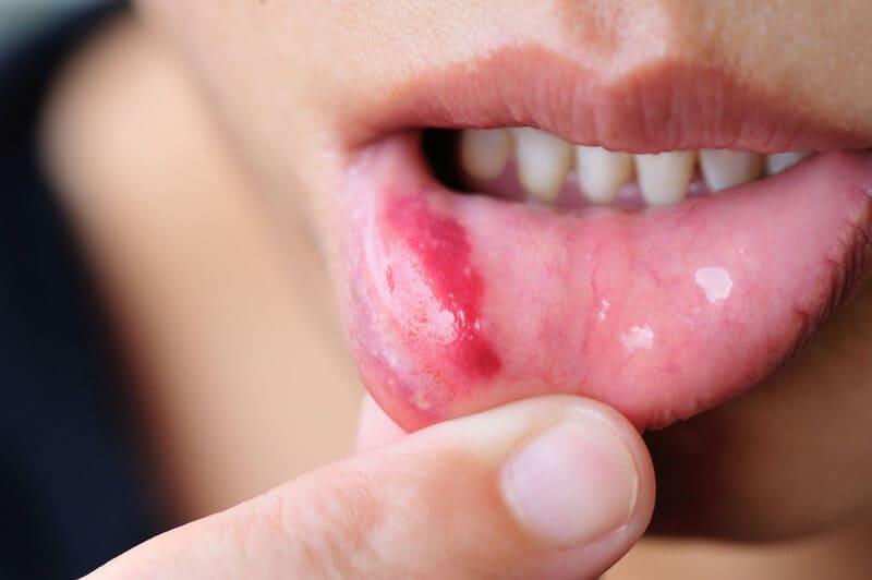 Симптомы и лечение катарального стоматита