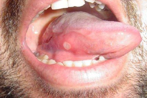 Язвочка на языке при стоматите
