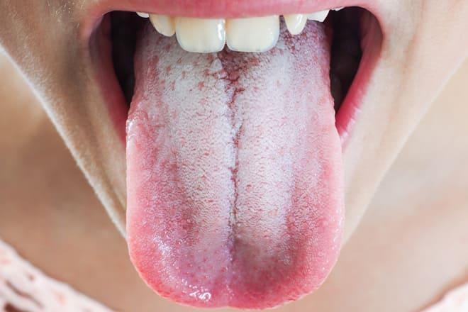 Проявления стоматита на языке