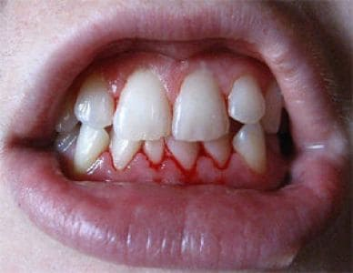 Симптом стоматита во рту